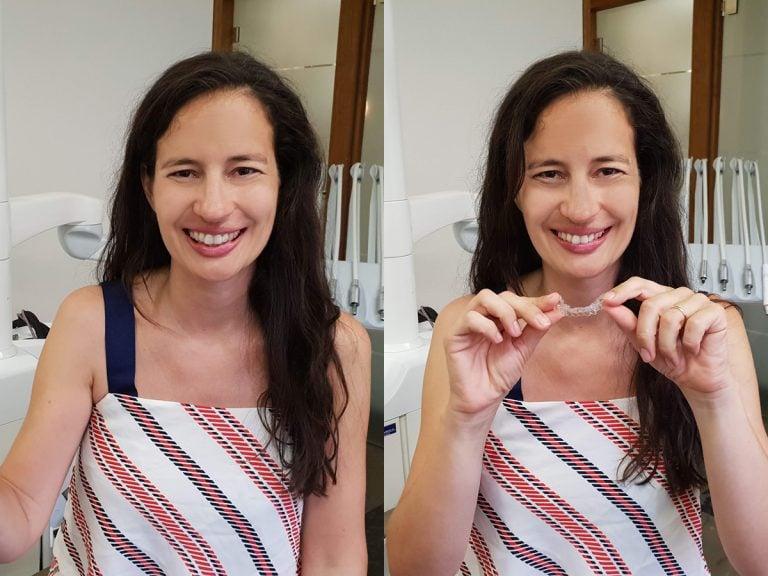 Die transparente Zahnspange ist jederzeit herausnehmbar