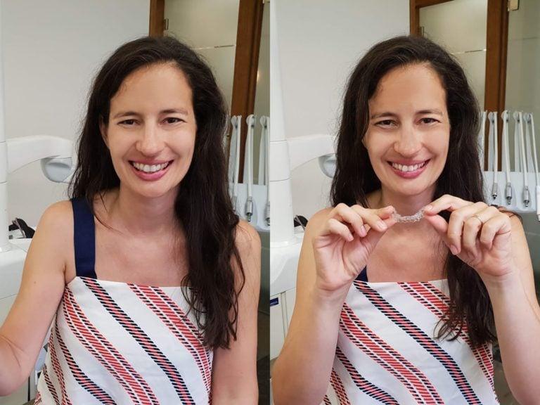 Unsichtbare Zahnschienen sind jederzeit herausnehmbar